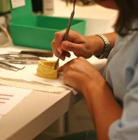 Implantes Dentales, técnicos dentales