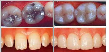Incrustacioned dentales en la Academia Americana de Técnicos Dentales